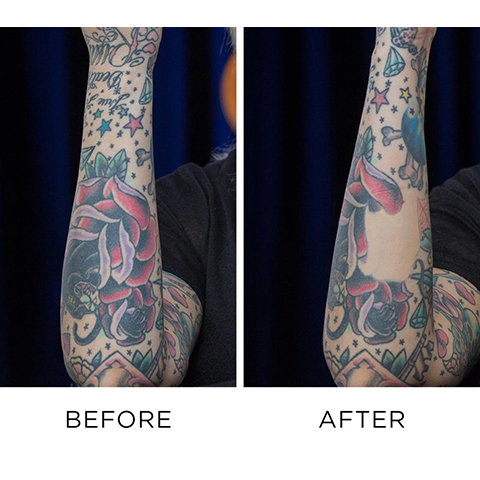 Before and After Using Naked Skin Color Correcting Fluid to Cover Up Tattoos